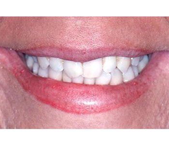 case 5 before Six Month Smiles treatment