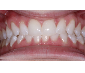 case 1 after Zoom treatment