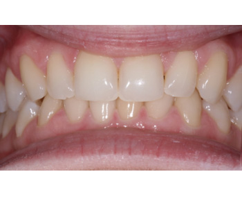 case 1 before Zoom treatment
