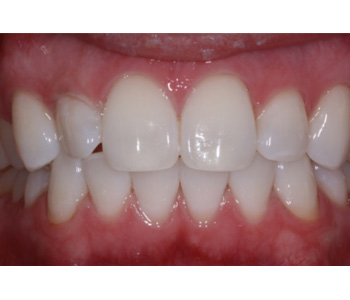 case 2 after Zoom treatment
