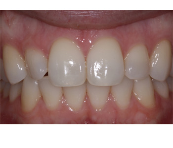 case 2 before Zoom treatment