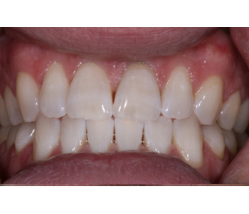 case 3 after Zoom treatment