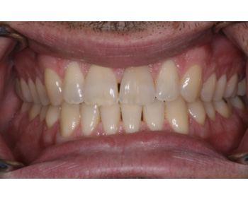 case 3 before Zoom treatment