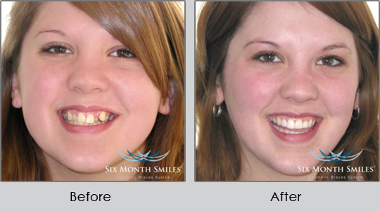 Smile Make Over Longview - Before and After Case 1