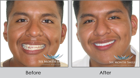 Smile Make Over Longview - Before and After Case 2