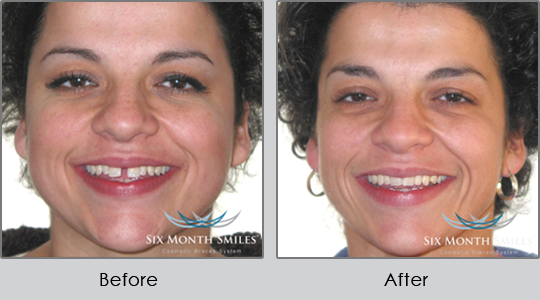 Smile Make Over Longview - Before and After Case 3