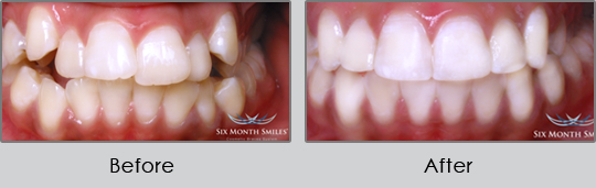 Smile Make Over Longview - Before and After Case 4